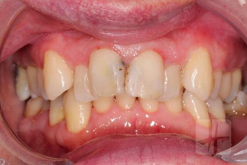 plombage-dentiste