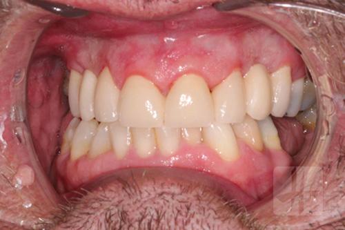 pont-fixe-dentiste