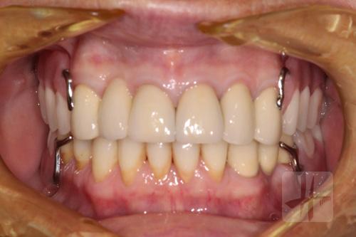 prothese-partielle-dentiste