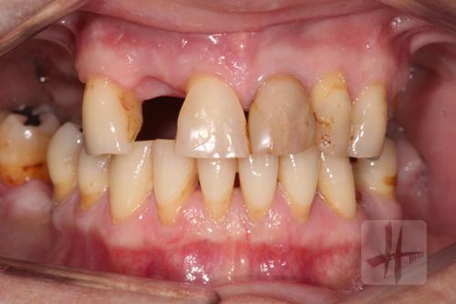 prothèse-partielle-dentiste